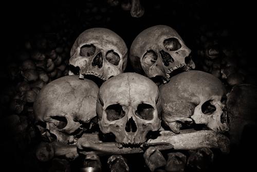 紀元前から行われてきた、頭蓋骨に穴を開ける穿頭術「トレパネーション」とは?
