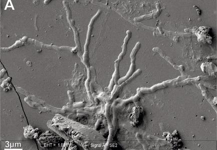 """2,000年前に起きたベスビオ火山噴火の犠牲者から""""無傷""""の脳細胞が発見される"""